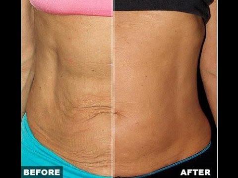 skin-weight